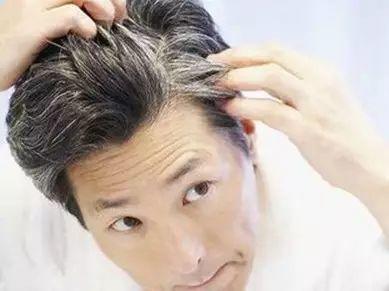 白发增多,小心动脉硬化!每天坚持吃它,黑发更多血管更健康