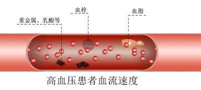 """【听健康】血栓最怕一个动作!10秒钟清理""""血管"""",效果超强!"""