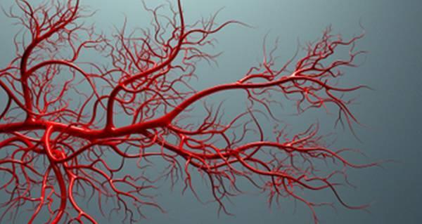 【听健康】血管每天都要清,坚持做这9件事,再也不怕堵!