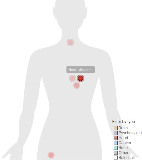 【听健康】你不动,癌症就要动起来了!这几张图惊醒无数人~