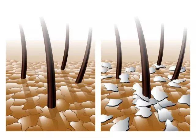 白头发拔一根长十根?关于头发正确保养法,答案在这儿!